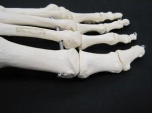 Big Toe -1st MTP Sand toe sprain