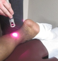 Cold laser for foot and ankle