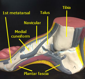 Plantar Fasciitis Bottom Foot Pain Treatment Sioux City