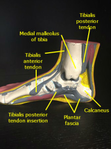 Muscles, tendons, and ligaments in arch of foot.