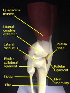 chondromalacia patella lateral