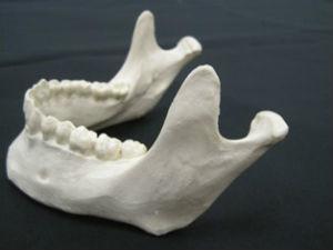 Lower mandible