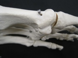sesamoid bones and sand toe sprains